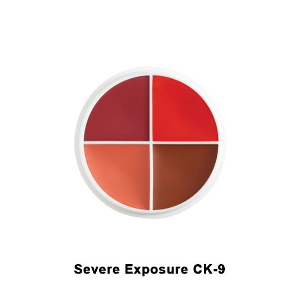 severe exposure